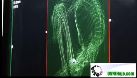 esqueleto da múmia extraterrestre encontrada no Peru
